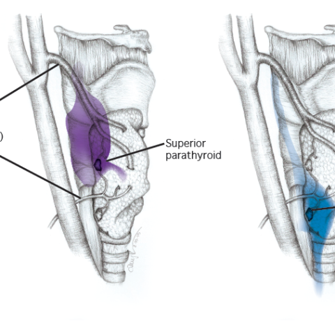 Parathyroid Illustration